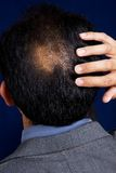 Bald Spot Stock Photo