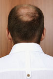 Bald spot Stock Images