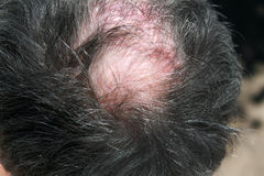 Bald spot on his head. Stock Images