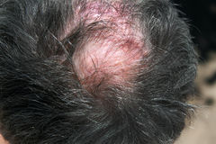 Bald spot on his head. Inflamed red skin.  Stock Photo