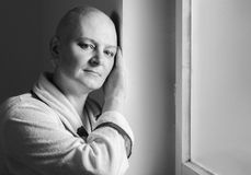 Bald woman suffering from cancer Stock Images