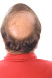 balding άτομο Στοκ Φωτογραφίες
