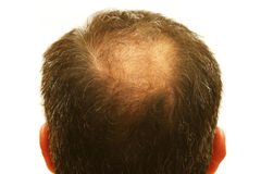 Balding head Royalty Free Stock Photography
