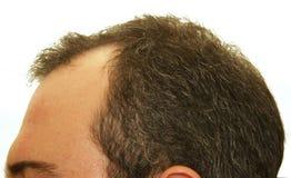 Balding head royalty free stock photos