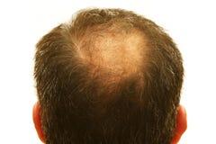 Balding Kopf Lizenzfreie Stockfotografie