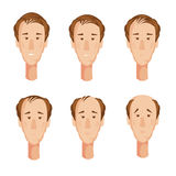 Balding Man Heads Set Stock Photos