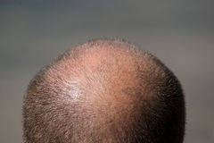 Balding Man's Head. Close up view of a balding man's head Royalty Free Stock Photography