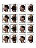 Balding Receding Hairline. Receding Hairline Balding Losing Hair High Quality 3D Image Stock Photos