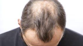 Free Balding Young Man, Hair Loss Problem Royalty Free Stock Photos - 149239308