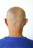 Baldness Stock Photo