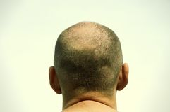 Baldness Royalty Free Stock Images