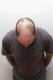 baldness imagem de stock