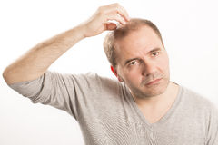 Baldness Alopecia man hair loss haircare Royalty Free Stock Image