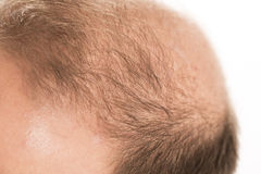 Baldness Alopecia man hair loss haircare. Medicine bald treatment transplantation Royalty Free Stock Image