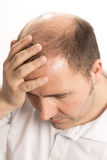 Baldness Alopecia man hair loss haircare Stock Image