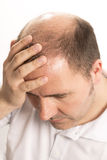 Baldness Alopecia man hair loss isolated Royalty Free Stock Photo