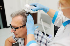 Baldness. diagnostics hair and scalp. Trihoskopiya. Doctor examine patient male hair a special apparatus royalty free stock images