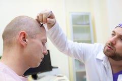 Baldness traktowanie Cierpliwy cierpienie od w?osianej straty w konsultacji z lekark? Przygotowanie dla w?osianego przeszczepu zdjęcie royalty free
