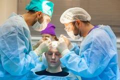 Baldness traktowanie W?osiany przeszczep Chirurdzy w sali operacyjnej wynosz? w?osian? przeszczep operacj? chirurgicznie obrazy stock