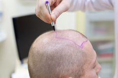 Baldness treatment. Patient suffering from hair loss in consultation with a doctor. Preparation for hair transplant. Surgery. The line marking the growth of stock image