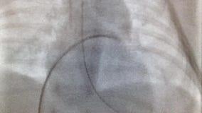 Balonowa dylatacja płucnej arterii klapa zbiory wideo