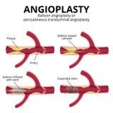 Balonowy angioplasty Fotografia Royalty Free