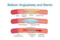 Balonowy angioplasty i stents procedura Fotografia Stock