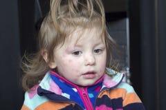 Bambina con l'eruzione sul suo fronte Immagini Stock