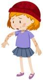 Bambina con tricofitosi sul suo corpo illustrazione vettoriale