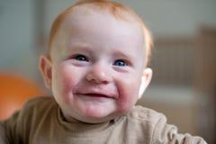 Bambino con l'allergia atopica immagini stock libere da diritti