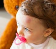 Bambino con la grande contusione sulla sua fronte dopo avere urtato fotografia stock
