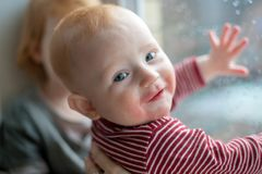 Bambino con le manifestazioni dell'allergia alimentare Immagine Stock Libera da Diritti