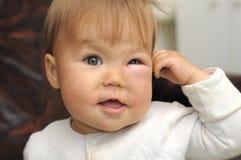 Bambino con un occhio gonfiato da un morso di insetto Immagini Stock