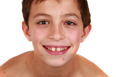 Bambino con varicella Fotografie Stock