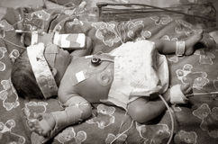 Bambino prematuro Fotografie Stock