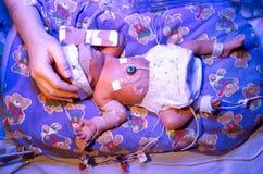Bambino prematuro Immagini Stock
