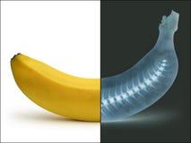 Banaan door Röntgenstraal Stock Afbeeldingen
