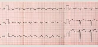 Band ECG med paroxysm av det atrial fladdrandet Arkivfoto