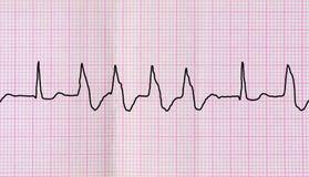 Band ECG med ventricular extrasystoles för grupp Arkivbilder