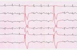 Band ECG med ventricular för tidiga takter (quadrigeminien) Fotografering för Bildbyråer