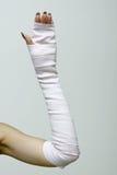 Bandażująca ręka zdjęcie royalty free