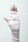 Bandażująca ręka fotografia royalty free