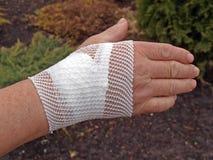 bandażujący nadgarstek fotografia stock