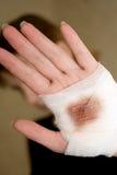 bandaż Obraz Stock