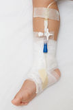 Bandage on baby leg Stock Images