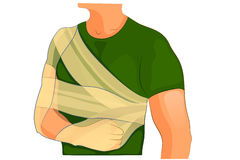 Bandage desault trauma shoulder and arm. Vector illustration of fixation bandages at fracture Royalty Free Stock Image