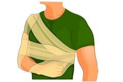 Bandage desault trauma shoulder and arm Royalty Free Stock Image