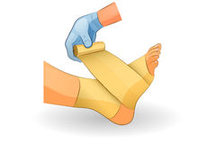 The bandage on the foot. Vector illustration of a bandage in case of injury of the ankle joint Stock Photography