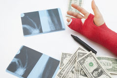 Bandaged Arm, X-Rays, Money And Pen Stock Photography