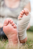 Bandaged foot. A woman's injured foot with bandage wrapped around it Royalty Free Stock Image